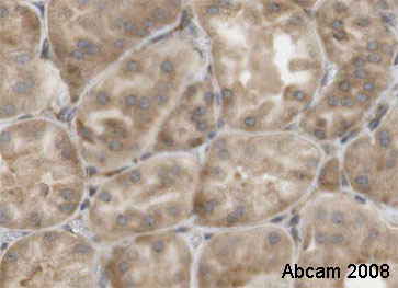Immunohistochemistry (Formalin/PFA-fixed paraffin-embedded sections) - EBP1 antibody (ab35424)