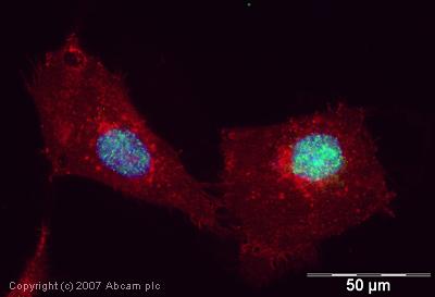 Immunocytochemistry/ Immunofluorescence - Artemis antibody (ab35649)