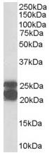 Western blot - Anti-Caveolin-1 antibody (ab36152)