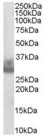 Western blot - Cathepsin F antibody (ab36161)