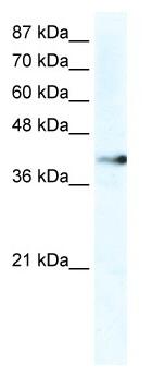Western blot - ZNF 556 antibody (ab36178)