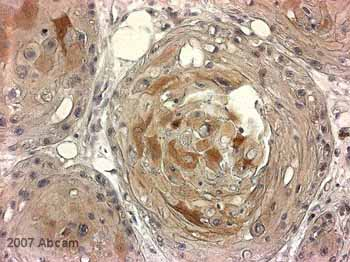 Immunohistochemistry (Formalin/PFA-fixed paraffin-embedded sections) - LRIG1 antibody (ab36707)