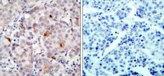 Immunohistochemistry (Paraffin-embedded sections) - ErbB 2 (phospho Y1221) antibody (ab36725)