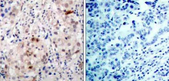 Immunohistochemistry (Paraffin-embedded sections) - ErbB 2 (phospho Y1222) antibody (ab36726)
