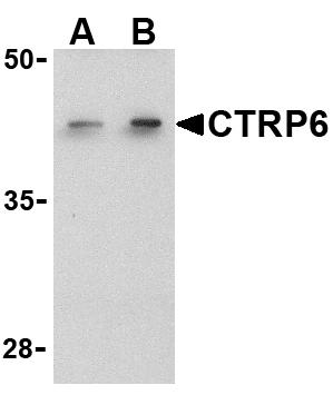 Western blot - CTRP6 antibody (ab36898)