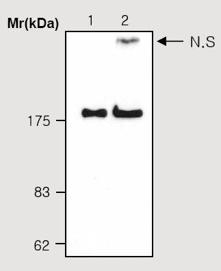 Western blot - alpha 2 Macroglobulin antibody [2D9] (ab36995)