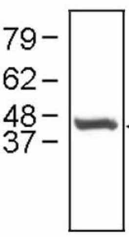 Western blot - Cathepsin E antibody (ab36996)