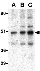 Western blot - TRAF2 antibody (ab37118)