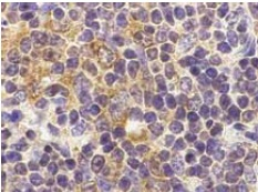 Immunohistochemistry (Formalin/PFA-fixed paraffin-embedded sections) - TLR9 antibody (ab37154)