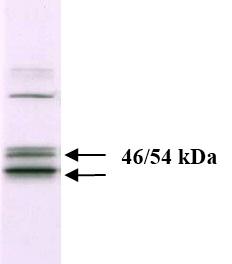 Western blot - JNK1+JNK2 antibody [279Q38] (ab37228)