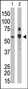 Western blot - PPP1G1 antibody (ab37503)