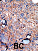 Immunohistochemistry (Formalin/PFA-fixed paraffin-embedded sections) - IKKi/IKKe antibody - Carboxyterminal end (ab37596)
