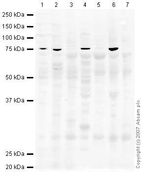 Western blot - PHF20 antibody (ab37605)