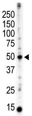 Western blot - PACSIN3 antibody (ab37612)