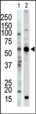 Western blot - PACSIN2 antibody (ab37615)