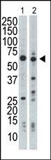 Western blot - MADM antibody - Aminoterminal end (ab37619)
