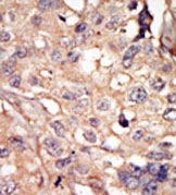 Immunohistochemistry (Formalin/PFA-fixed paraffin-embedded sections) - ARK5 antibody (ab37641)