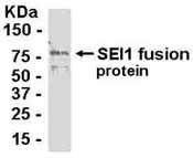 Western blot - Sertad1 antibody (ab37660)