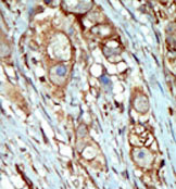 Immunohistochemistry (Formalin/PFA-fixed paraffin-embedded sections) - PI 4 Kinase type 2 beta  antibody (ab37812)