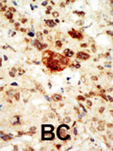 Immunohistochemistry (Formalin/PFA-fixed paraffin-embedded sections) - Ephrin A1 Receptor antibody - Carboxyterminal end (ab37857)