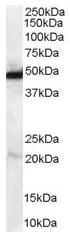 Western blot - NDRG1 antibody (ab37897)