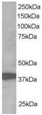 Western blot - RNF39 antibody (ab37898)