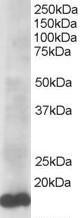 Western blot - Ube2L3 antibody (ab37913)