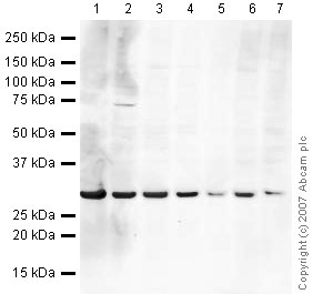 Western blot - eEF1B2 antibody (ab37957)