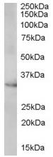 Western blot - VDAC2 antibody (ab37985)