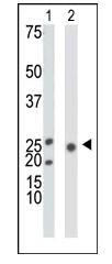 Western blot - ketohexokinase antibody (ab38282)