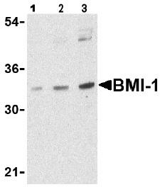 Western blot - Bmi1 antibody (ab38295)