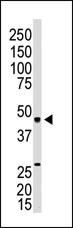 Western blot - EDG3 antibody (ab38324)