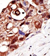 Immunohistochemistry (Formalin/PFA-fixed paraffin-embedded sections) - PIGK antibody (ab38445)
