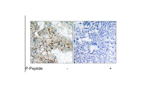 Immunohistochemistry (Paraffin-embedded sections) - Integrin beta 3 (phospho Y773) antibody (ab38460)