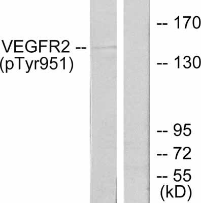 Western blot - VEGF Receptor 2 (phospho Y951) antibody (ab38473)