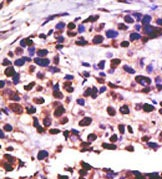 Immunohistochemistry (Formalin/PFA-fixed paraffin-embedded sections) - Anti-USP25 antibody (ab38498)