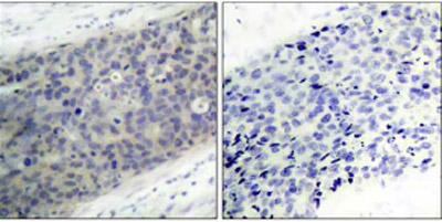 Immunohistochemistry (Paraffin-embedded sections) - LIM kinase 2 (phospho T505) antibody (ab38499)