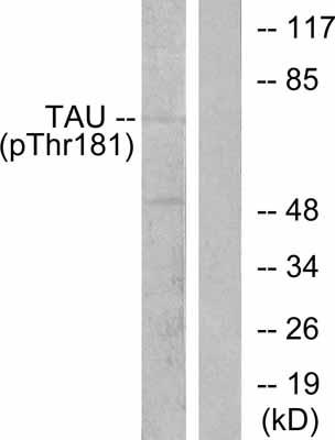 Western blot - Anti-Tau (phospho T498) antibody (ab38505)