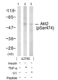 Western blot - AKT2 (phospho S474) antibody (ab38513)