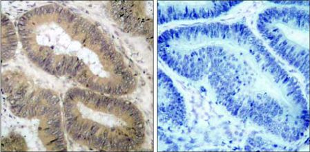 Immunohistochemistry (Formalin/PFA-fixed paraffin-embedded sections) - Anti-IKK alpha (phospho T23) antibody (ab38515)