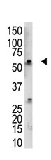 Western blot - RBCK1 antibody (ab38540)