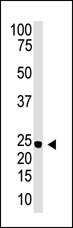 Western blot - Neurogenin3 antibody (ab38548)