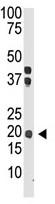 Western blot - IL28A antibody (ab38570)