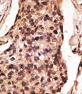 Immunohistochemistry (Formalin/PFA-fixed paraffin-embedded sections) - SIGLEC8 antibody (ab38578)