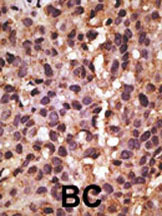 Immunohistochemistry (Formalin/PFA-fixed paraffin-embedded sections) - BNIP3 antibody (ab38621)