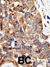 Immunohistochemistry (Formalin/PFA-fixed paraffin-embedded sections) - PAIAS gamma antibody (ab38622)