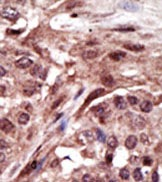 Immunohistochemistry (Formalin/PFA-fixed paraffin-embedded sections) - Anti-MPDU1 antibody (ab38856)