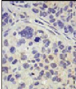 Immunohistochemistry (Formalin/PFA-fixed paraffin-embedded sections) - UBPY/USP8 antibody (ab38865)