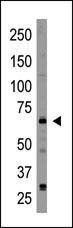 Western blot - CRY2 antibody (ab38872)
