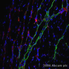 Immunohistochemistry (Frozen sections) - MMP9 antibody - Whole molecule (ab38898)